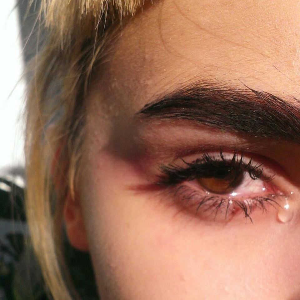 思いっきり泣いて目がパンパンはもう終わり!腫れたときするべきことはコレ!