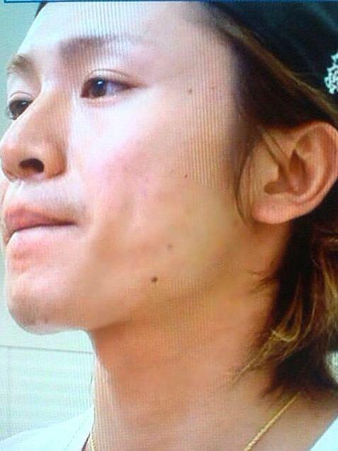 ジャニ ピアス 関 安田 安田章大が変わった!?ピアスとサングラスがいかつい&髪型激変の理由は…
