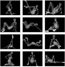 X rayの画像(レントゲンに関連した画像)